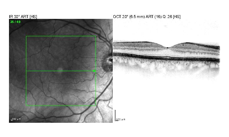 Optische Kohärenztomographie Sinnvoll